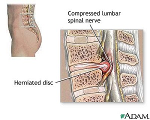 herniated-disc-adam