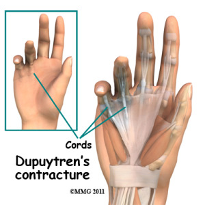 dupuytrens_contracture_cord